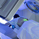 Woman Receiving Radiation Therapy/ Radiotherapy Treatments for Thoracic Cancer